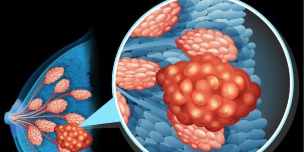 Krūties vėžiu sergančioms moterims naujas gydymas išgyvenamumą padidina 30 proc.