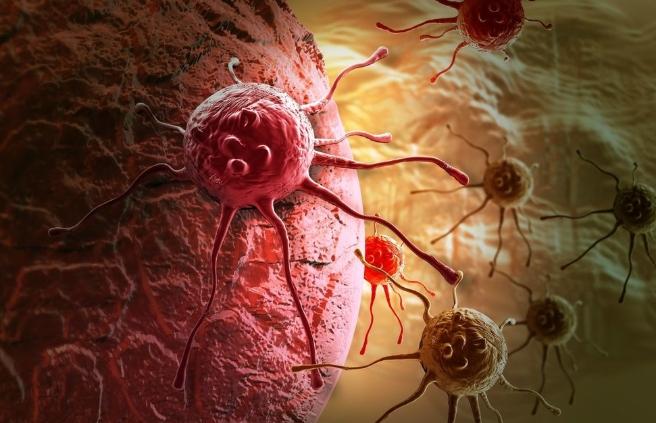 Ši liga gali kirsti itin skaudžiai: užklumpa netikėtai ir progresuoja dienomis