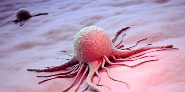 Ši onkologinė liga gali ilgai apgaudinėti net gydytojus: simptomai tai atsiranda, tai išnyksta